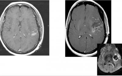 Weill Cornell OMInar in Neurosurgery (Brain)